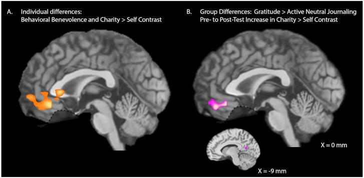 Zdjęcie tomografii mózgu w badaniu na temat wdzięczności i altruizmu